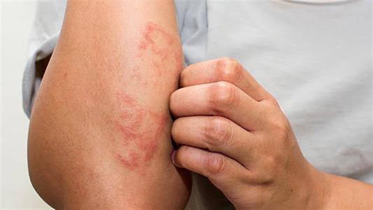 allergiás ekcema)