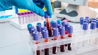 'Έρευνα: Η ομάδα αίματος δεν παίζει ρόλο στον κίνδυνο νόσησης από covid-19