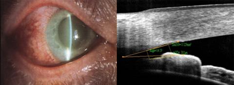 be3b0ab728 Τι είναι το γλαύκωμα - Γλαύκωμα - Οφθαλμολογία - Υγεία